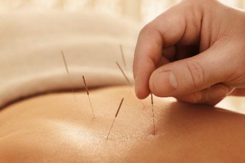 Acupuncturist Businesses Florida